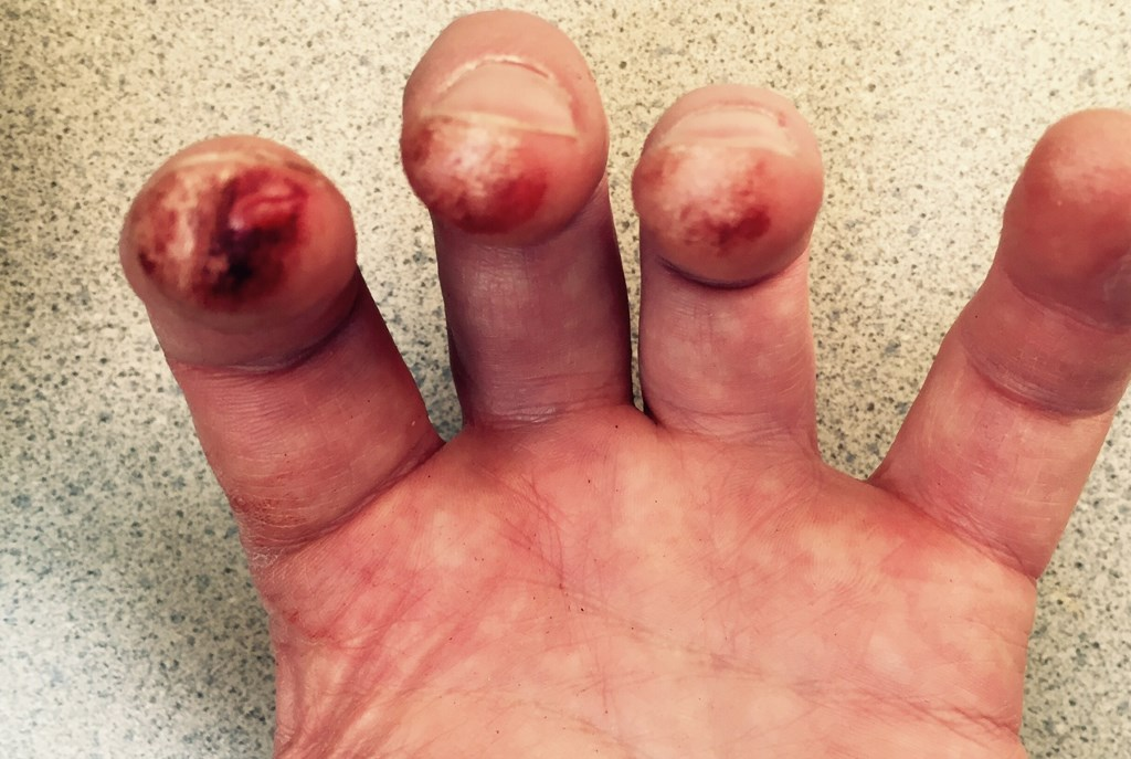 This was Frank Almond's hand last night during the concert. Photo courtesy of Almond.