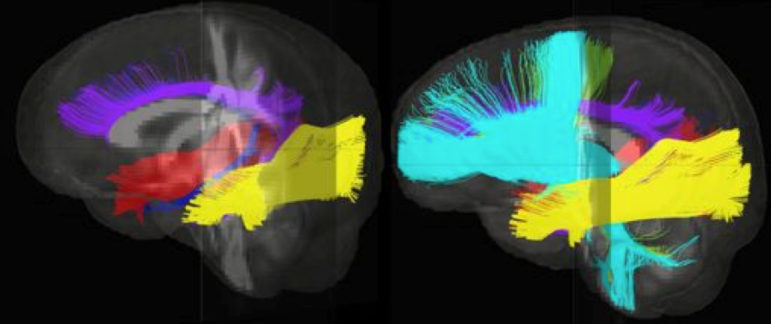 This image shows different fiber bundles in the brain that could be affected by early social neglect. Changes in these pathways may mean information moves less effectively through the brain, resulting in possible problems with memory, attention, visual and spacial skills, planning, thinking and many other 'higher-order' executive functions that children need to do well in school. Image courtesy of Jamie Hanson/Carolina Consortium on Human Development, Duke University.