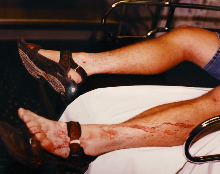 Ken Hudson is seen at St. Elizabeth Hospital in Appleton, Wis., after his arrest for the June 25, 2000, murder of Shanna Van Dyn Hoven. DNA testing has found the victim's DNA on Hudson's sandals but not on his feet. Initial testing also found a combination of Hudson's and the victim's DNA on his right hand, but later testing found no DNA. (Outagamie County Sheriff's Department)