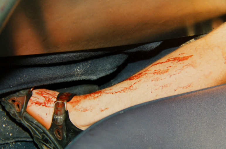 Ken Hudson's left leg appears covered in blood in the back of a squad car after his June 25, 2000, arrest. Although the victim's DNA was found on Hudson's sandal, the State Crime Lab and private labs hired by the defense have found either no DNA or just a sequence matching Hudson and certain relatives on his left foot. (Outagamie County Sheriff's Department)