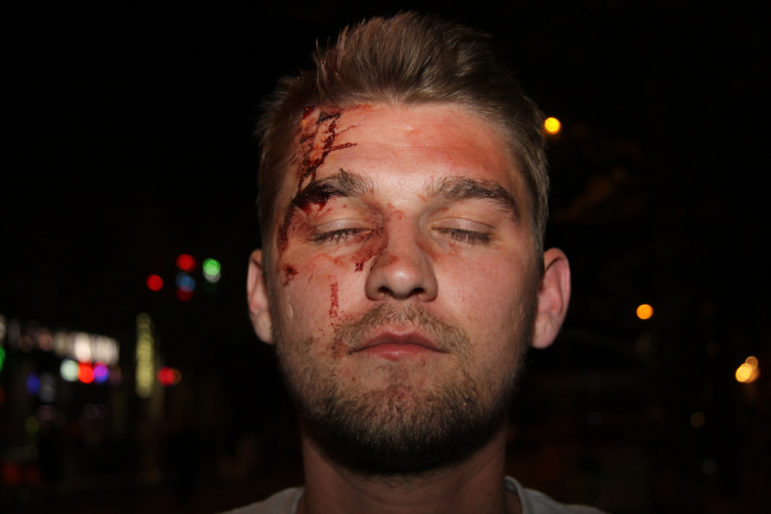 Thaddeus Pall was attacked in May 2017 in downtown Madison, Wis., by a group of men he suspected were anti-fascists. The FBI has investigated the attack, which Pall said came after he and other Proud Boys members met at a Madison bar. No charges have been filed. Photo from the Madison Police Department.