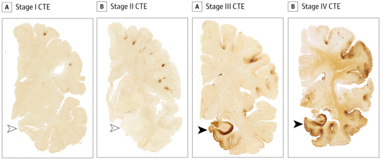 Tissue samples from former college and NFL football players' brains show various stages of chronic traumatic encephalopathy. From left, the Stage 1 sample is from a former college football player. The Stage 2, 3 and 4 samples are from former NFL players. Indications of CTE appear dark brown on the samples. Reproduced with permission from JAMA. 2017;318(4):360-370. Copyright © 2017 American Medical Association. All rights reserved.