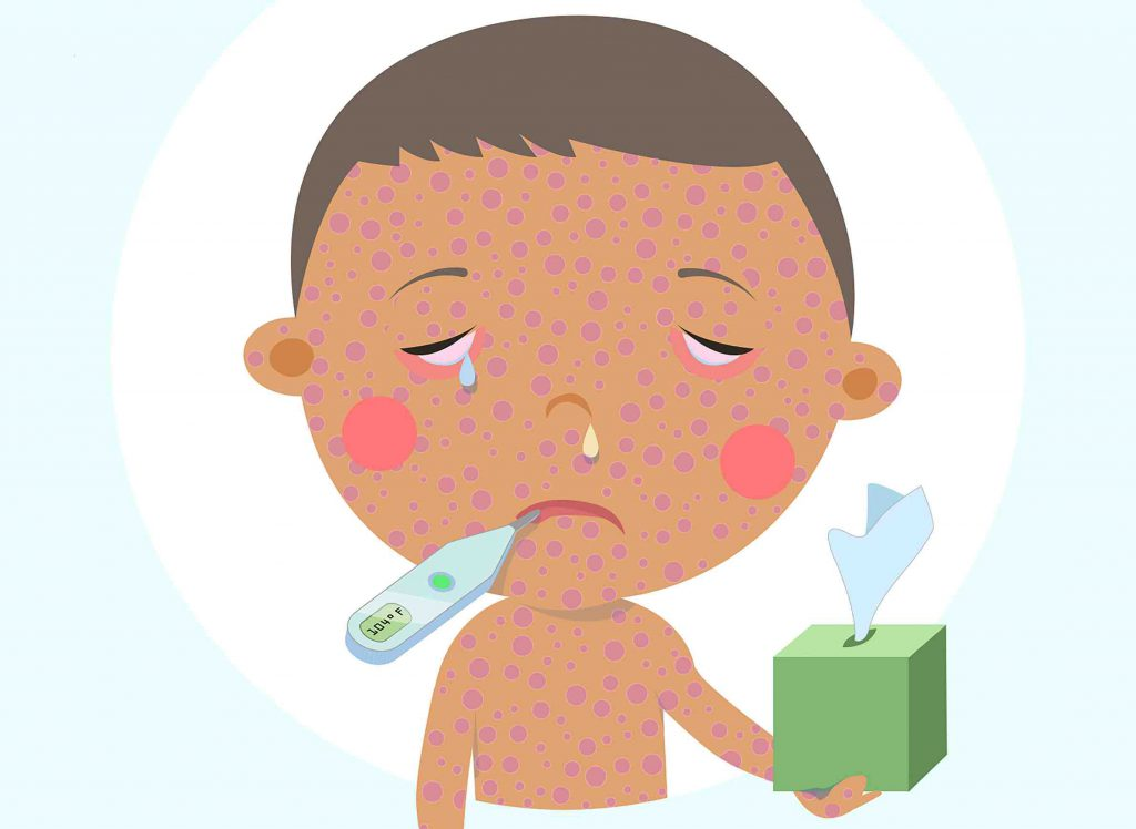 Measles. Image from the Centers for Disease Control and Prevention.