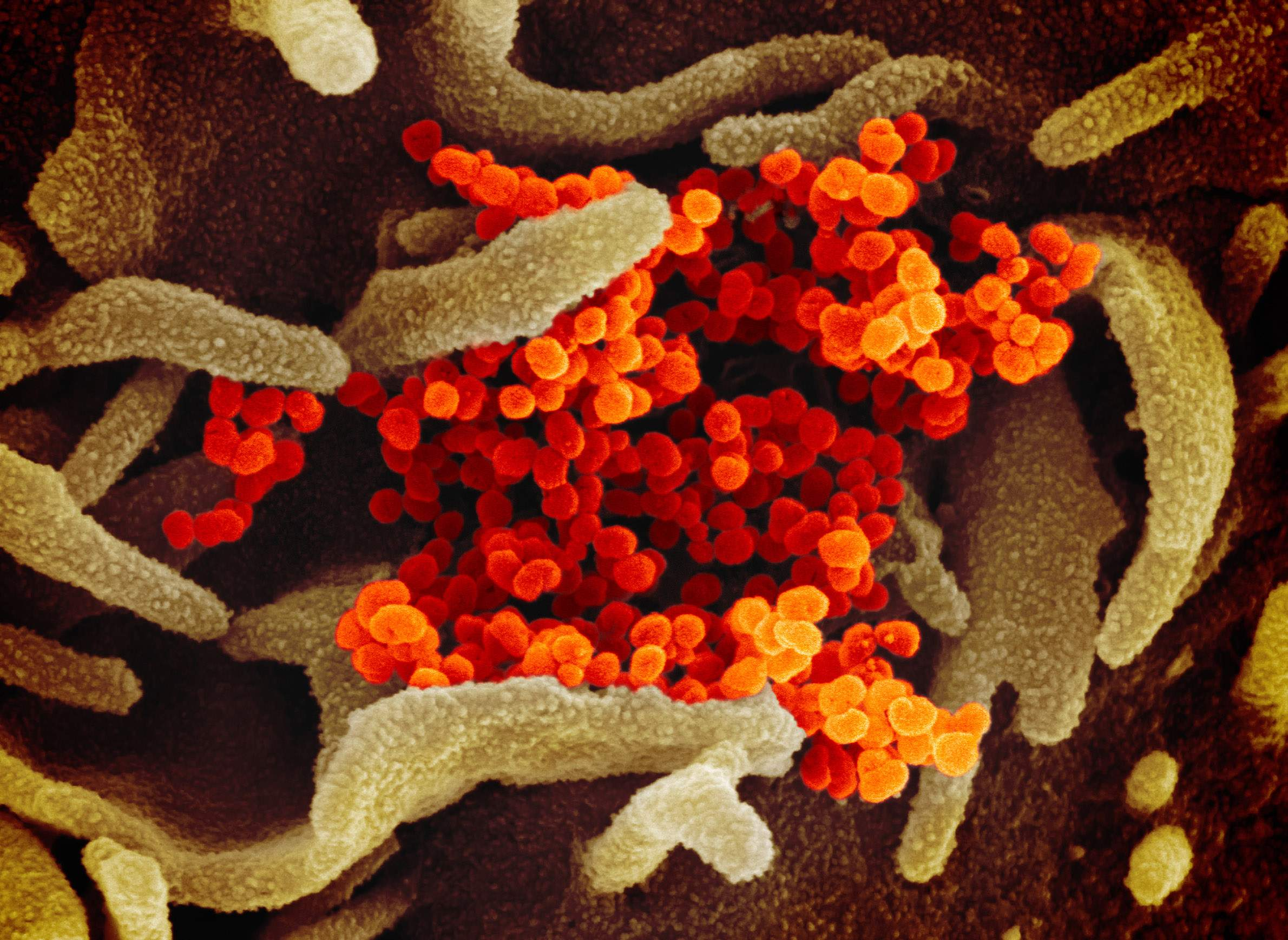 A scanning electron microscope image shows SARS-CoV-2 viruses (in orange) emerging from the surface of cells cultured in the lab. SARS-CoV-2, also known as 2019-nCoV, is the virus that causes COVID-19. The virus shown was isolated from a patient in the U.S. Image from the National Institute of Allergy and Infectious Diseases/Rocky Mountain Laboratories (CC BY 2.0).